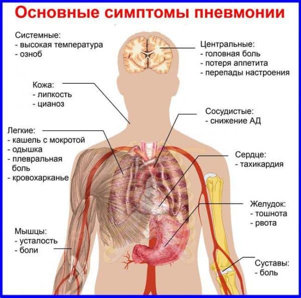 osnovnye-simtpomy-pnevmonii