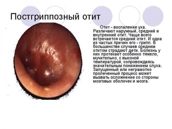 postgrippoznyj-otit