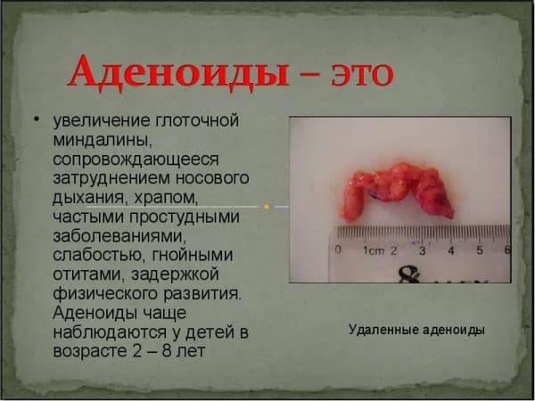prichiny-vozniknoveniya-i-simptomy