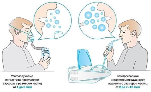 raznica-mezhdu-ultrazvukovymi-i-kompressornymi-ingalyatorami