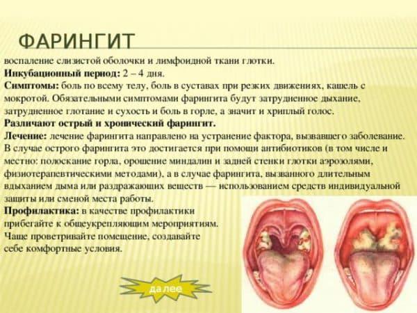 simptomy-faringita