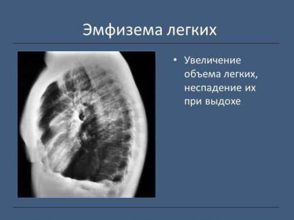 emfizemy-lyogkix