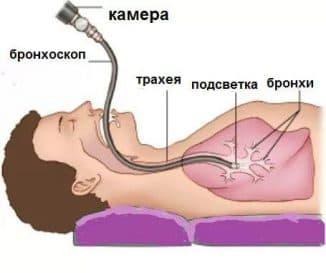 bronxoskopiya