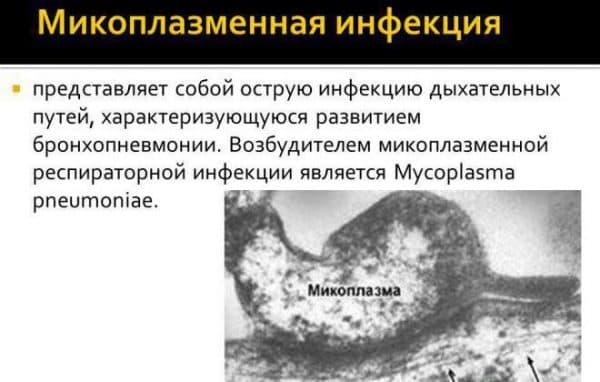 mikoplazmennaya-infekciya