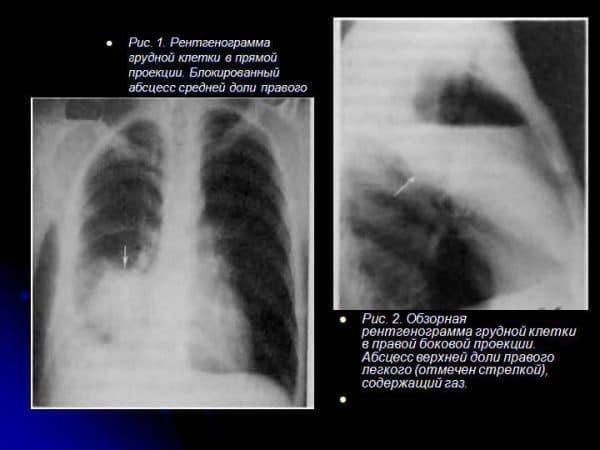 Определение абцесса легкого по рентгеновскому снимку