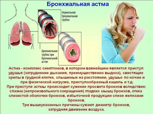 opredelenie-astmy