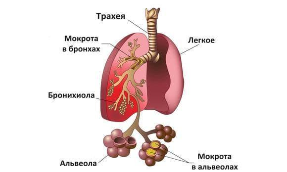 opredelenie-vospaleniya-legkix