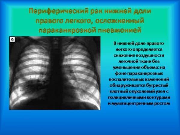 parakankroznaya-pnevmoniya-primer-razvitiya-pri-onkologii