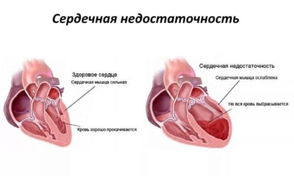 Сердечно-легочная недостаточность