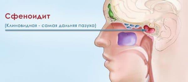 Сфеноидит