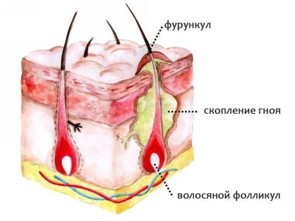 Как образуется фурункул в носу