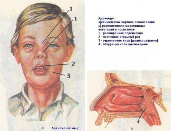 Внешние признаки изменений при аденоидите