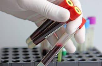 analiz-krovi-dlya-diagnostiki-prevmonii