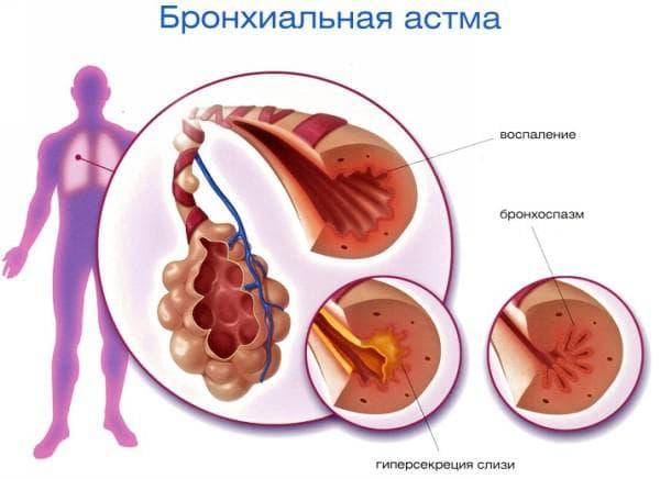 Брон астма мкб 10