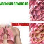 воспаление легких симптомы и лечение у взрослых