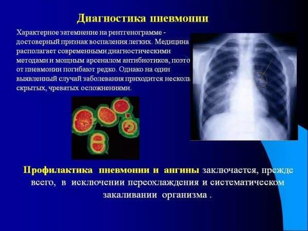 диагностика скрытой пневмонии