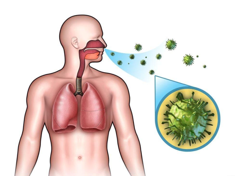 Можно ли заразиться воспалением легких