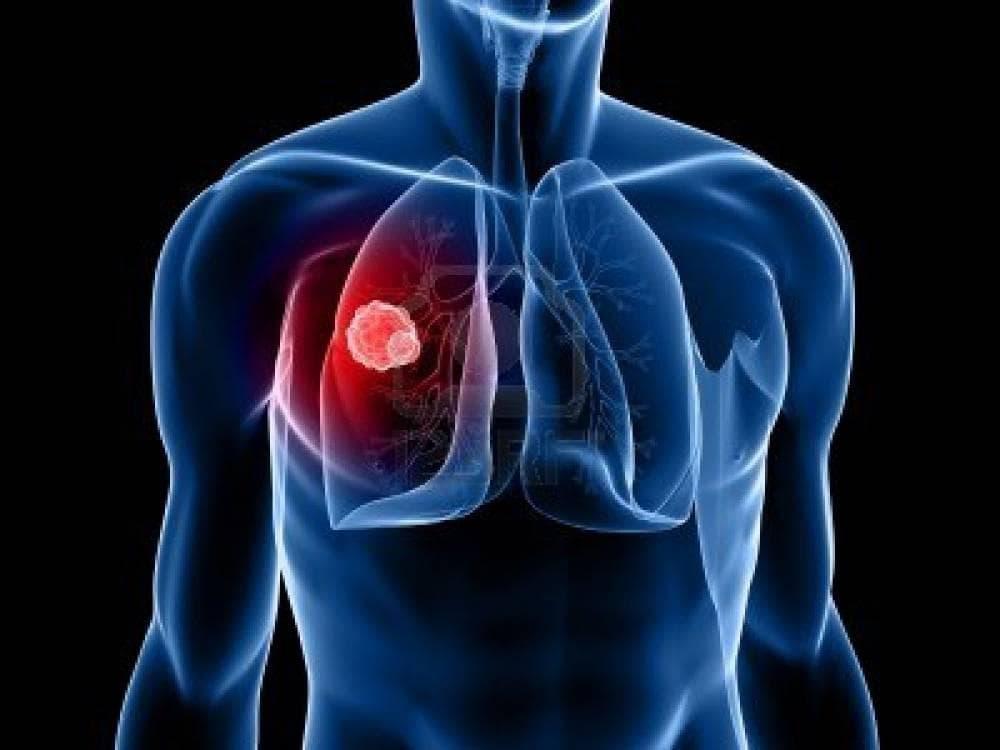 Открытый туберкулез как передается