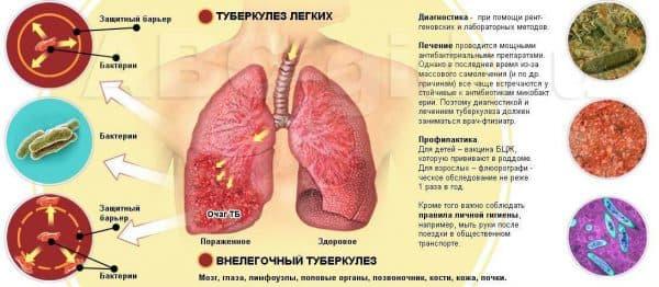 kakie-organy-porazhaet-tuberkulez