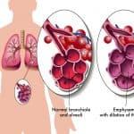 Как лечить пневмонию у взрослых: симптомы и профилактика