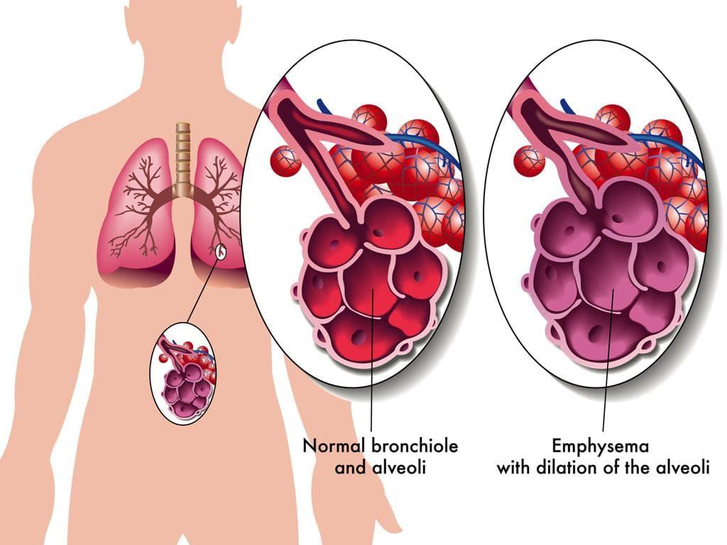 Атипичная пневмония симптомы у взрослых без температуры