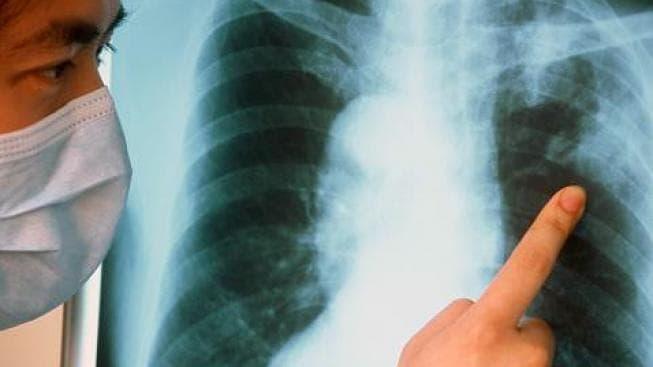 Как вылечить туберкулез дома
