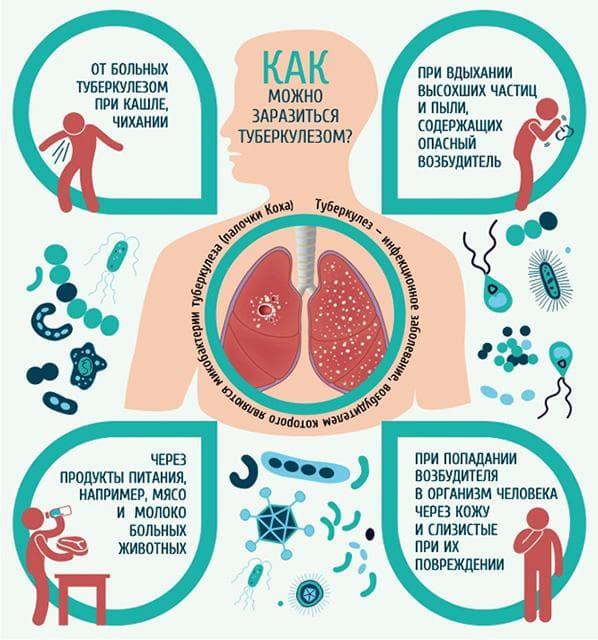 kak-mozhno-zarazitsya-tuberkulezom-rebenku