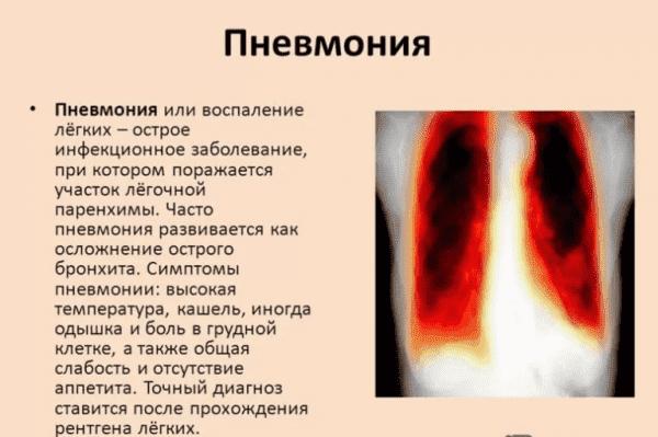 kak-opredelit-pnevmoniyu-u-rebenka