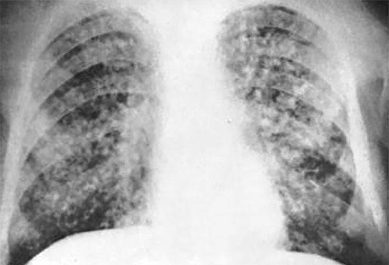 Диагностика туберкулеза у взрослых на ранней стадии