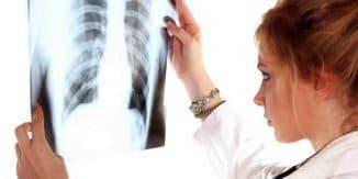 kak-proyavlyaetsya-tuberkulez-u-detej