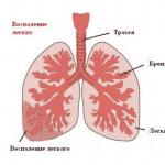 Как распознать воспаление легких: симптомы и лечение