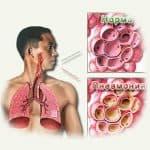 крупозная пневмония симптомы