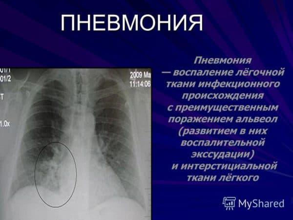 opredelenie-zabolevaniya-pnevmoniya