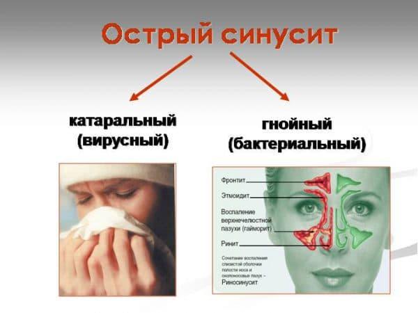 opredelenie-sinusita