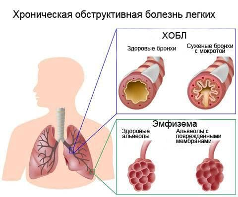 opredelenie-xobl