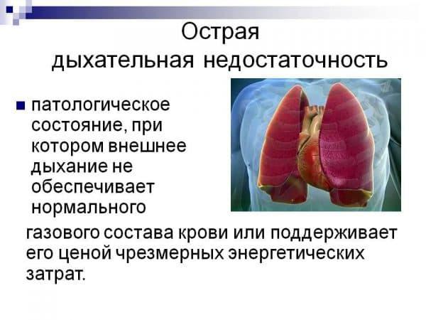 ostraya-dyxatelnaya-nedostatochnost