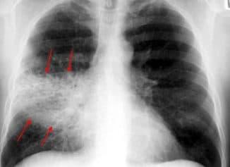 очаговая пневмония симптомы и лечение
