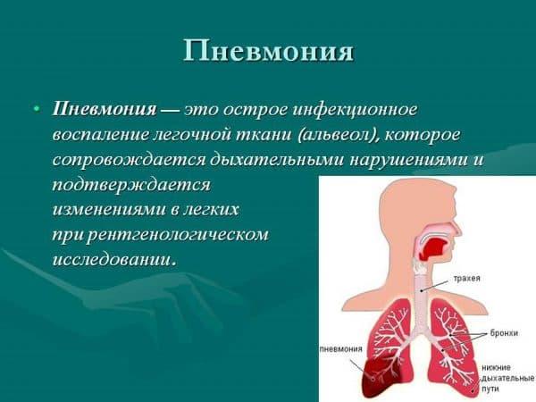 pnevmoniya