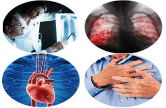 последствия пневмонии у взрослых
