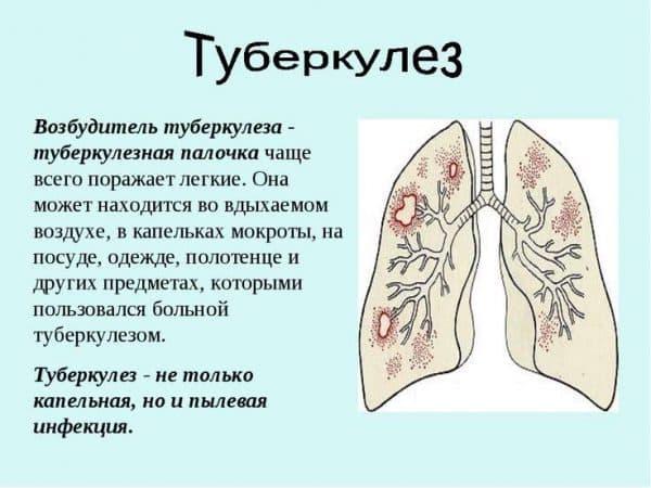 prichiny-vozniknoveniya-tuberkuleza