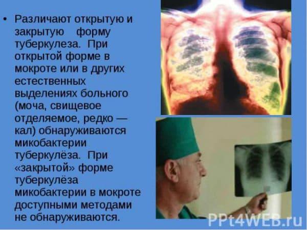 razlichiya-mezhdu-zakrytoj-i-otkrytoj-formoj-tuberkuleza