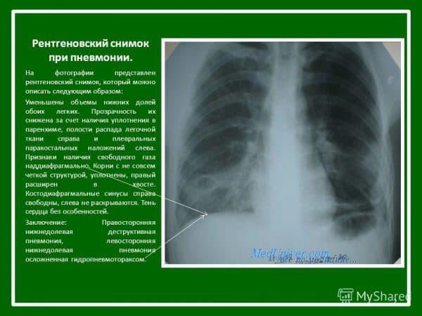rentgenovskij-snimok-pri-pnevmonii