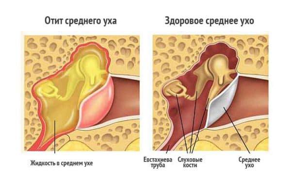 srednij-otit-kak-prichina-razvitiya-tugouxosti