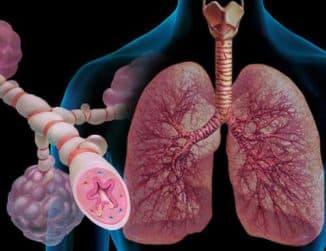 bronxoobstruktivnyj-sindrom