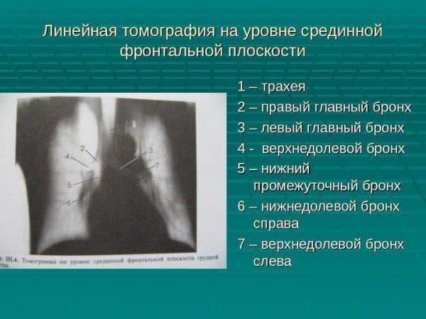 Лучеая диагностика нижних дыхательных путей