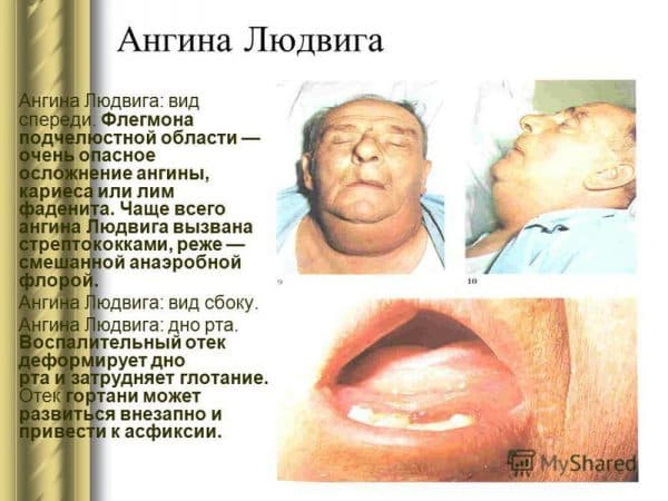 opredelenie-anginy-lyudviga
