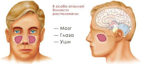 Осложнения гайморита могут отразиться на следующих органах