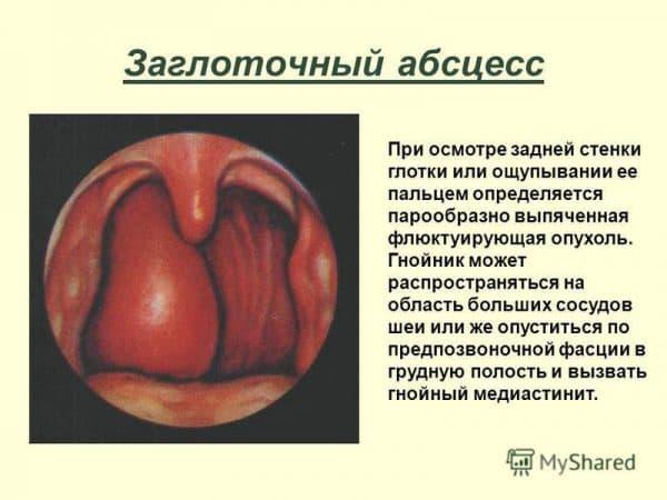 Перитонзиллярный или заглоточный абсцесс