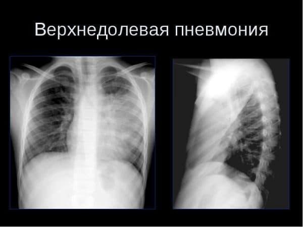 Рентгенологическая картина верхнедолевой пневмонии