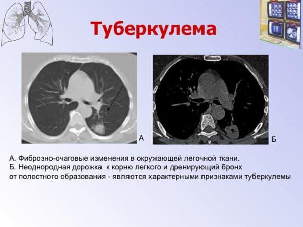 tuberkuloma-legkix